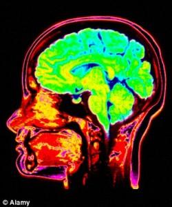 Psycopath's brain